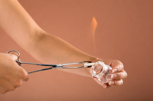 Therapist Holding Lit Camphor With Tong And Cup