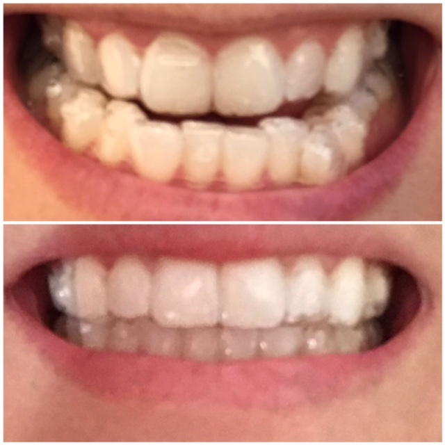 Invisalign® clear aligners before and in progress photos
